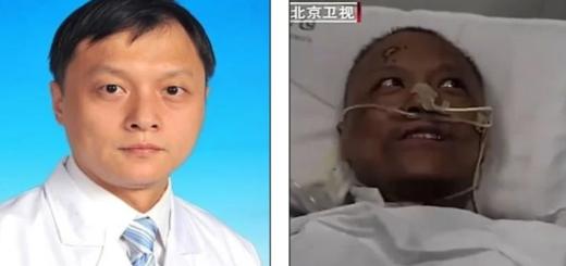 Dos médicos de Wuhan salvan su vida después de tres meses y descubren un brusco cambio del color de su piel
