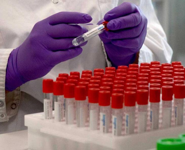 Coronavirus: Mejor no infectarse ahora