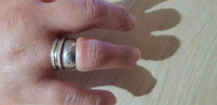 Insólito: se le atascó un anillo en el dedo y debió recurrir a los bomberos para extraerlo