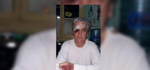 Una pareja de jubilados sufrió un violento asalto en el centro de Oberá a plena luz del día