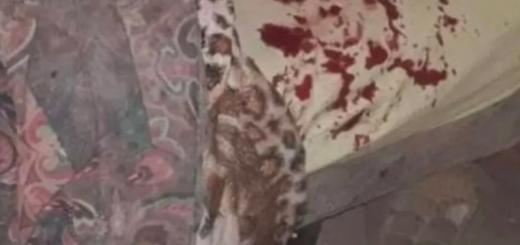 Santa Fe: un hombre mordió a su novia y le arrancó una oreja