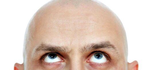 Calvicie: según un estudio, las personas calvas tienen más posibilidades de contraer coronavirus