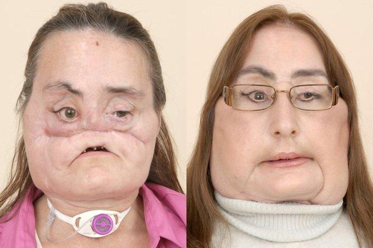 Estados Unidos: murió la mujer que recibió el primer trasplante facial