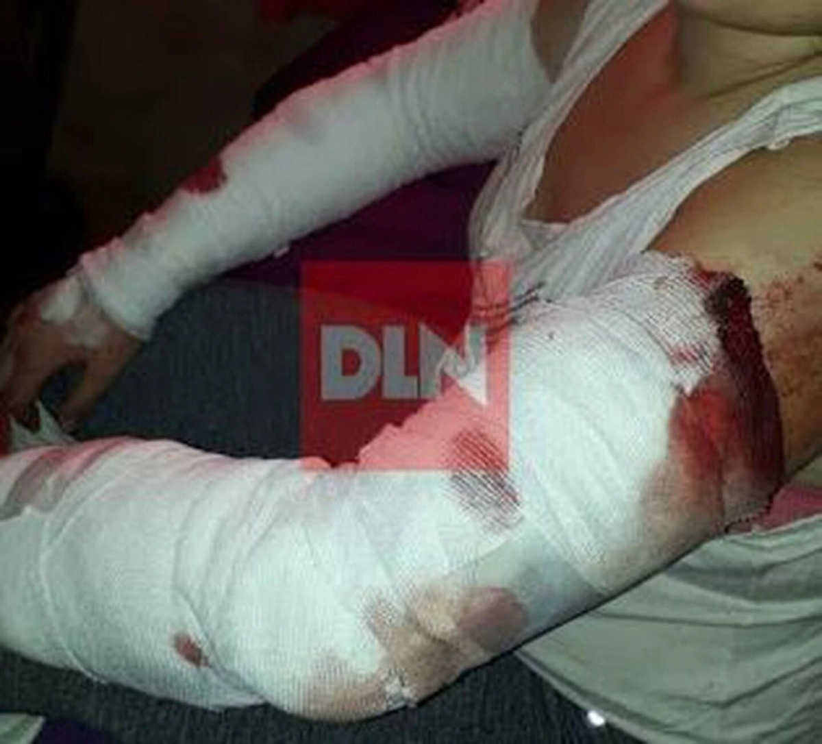 Una jauría atacó a una adolescente y casi la mata