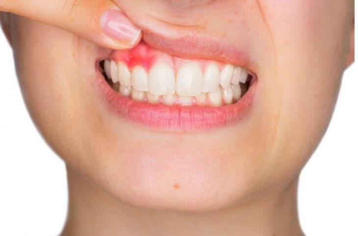 Científicos afirman haber descubierto como la periodontitis puede causar demencia