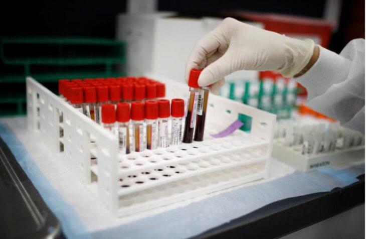 Personas con tipo de sangre O serían menos vulnerables — Coronavirus