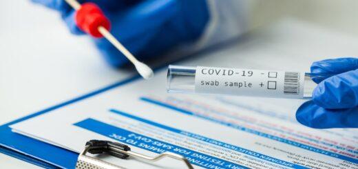 Tipos y precios de las distintas pruebas para detectar el coronavirus en un laboratorio privado de Posadas