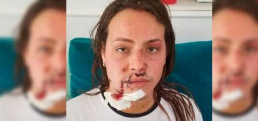 golpeada por su novio