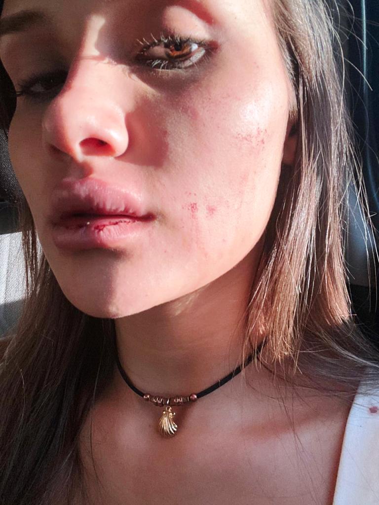 Eldorado: modelo misionera golpeada por su expareja lo denunció y realizaron una marcha para pedir Justicia