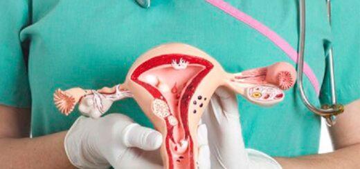 En Argentina, más de 2.000 mujeres mueren por cáncer de cuello de útero cada año