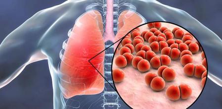 Tiempos de pandemia: ¿Cómo distinguir entre alergia, gripe y coronavirus y no alarmarse?