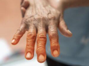 Día mundial del Parkinson: características de la enfermedad y tratamiento