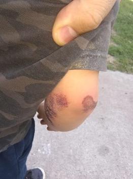 Rosario: motochorros arrastraron 50 metros a un bebé por la calle para robarle su mochila