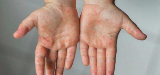 Internaron en Chubut a un nene de 7 años con el síndrome de Kawasaki, una enfermedad derivada del covid