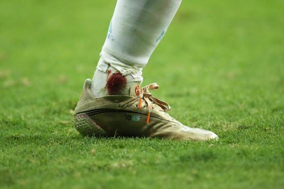 El tobillo de Messi, como el de Maradona: la imagen que preocupó tras la patada de Fabra