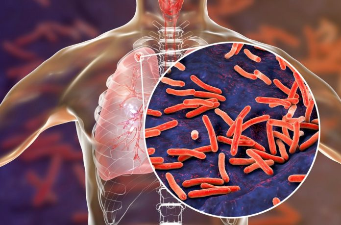 muertes por tuberculosis